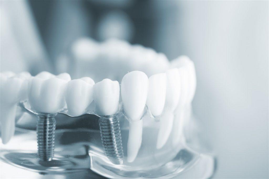 dental implants newport new va